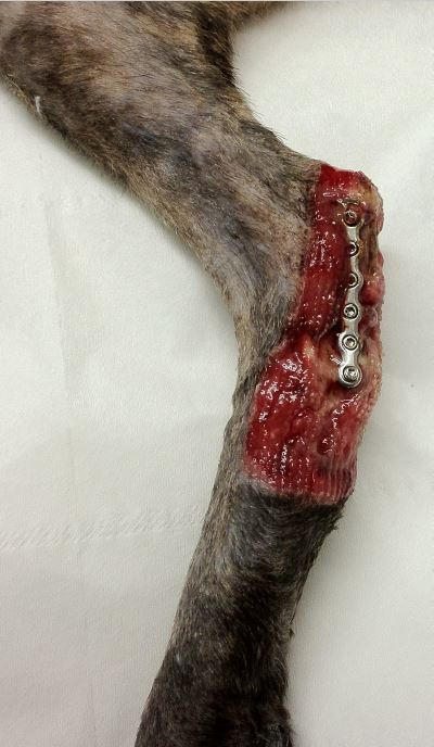 Plaque en place après ablation tumeur et curetage tissulaire