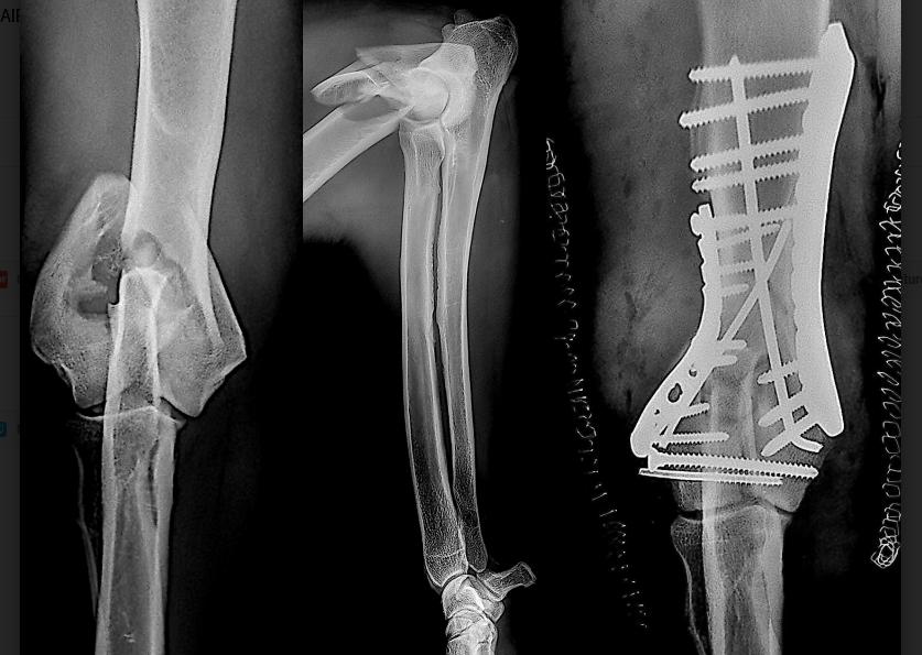 Fracture complexe du coude chez le chien