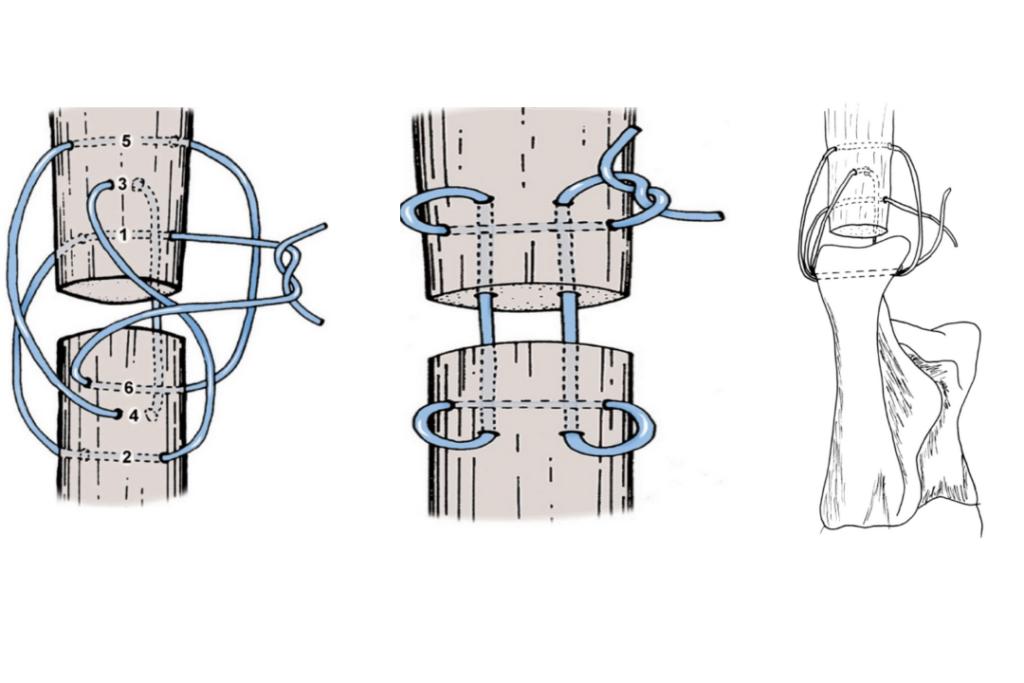 suture tendineuse en poulie à trois boucles - Orthovet, clinique vétérinaire St Jean de Védas